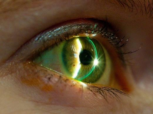 slit lamp anterior eye