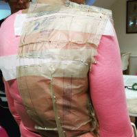 Tissue Fitting lessons dress pattern for scoliosis. Brighton