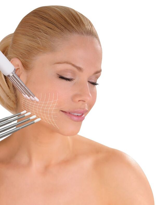 CACI Signature Non surgical facelift