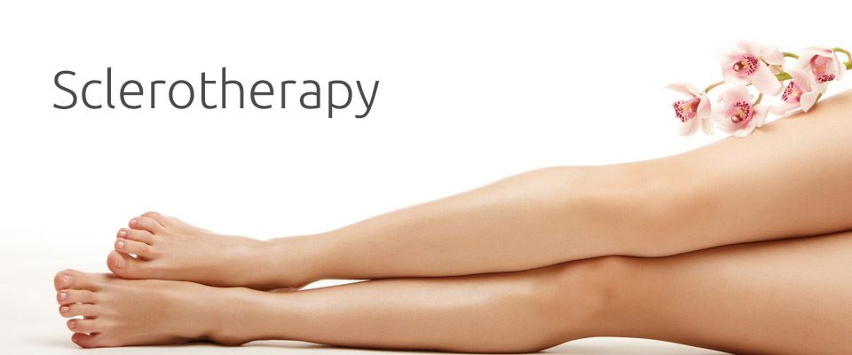 Sclerotherapy_image010