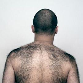 hairyback
