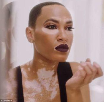 Vitiligo Female Beauty 2