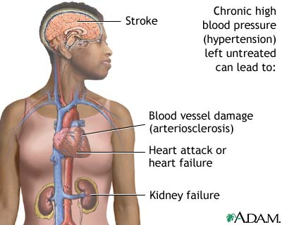 untreated-hypertension-picture