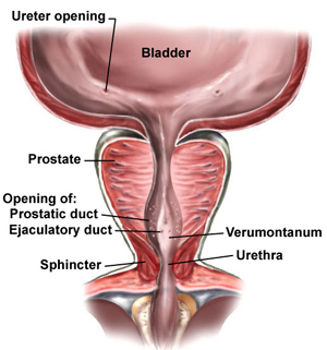 prostatitis-symptoms-in-men
