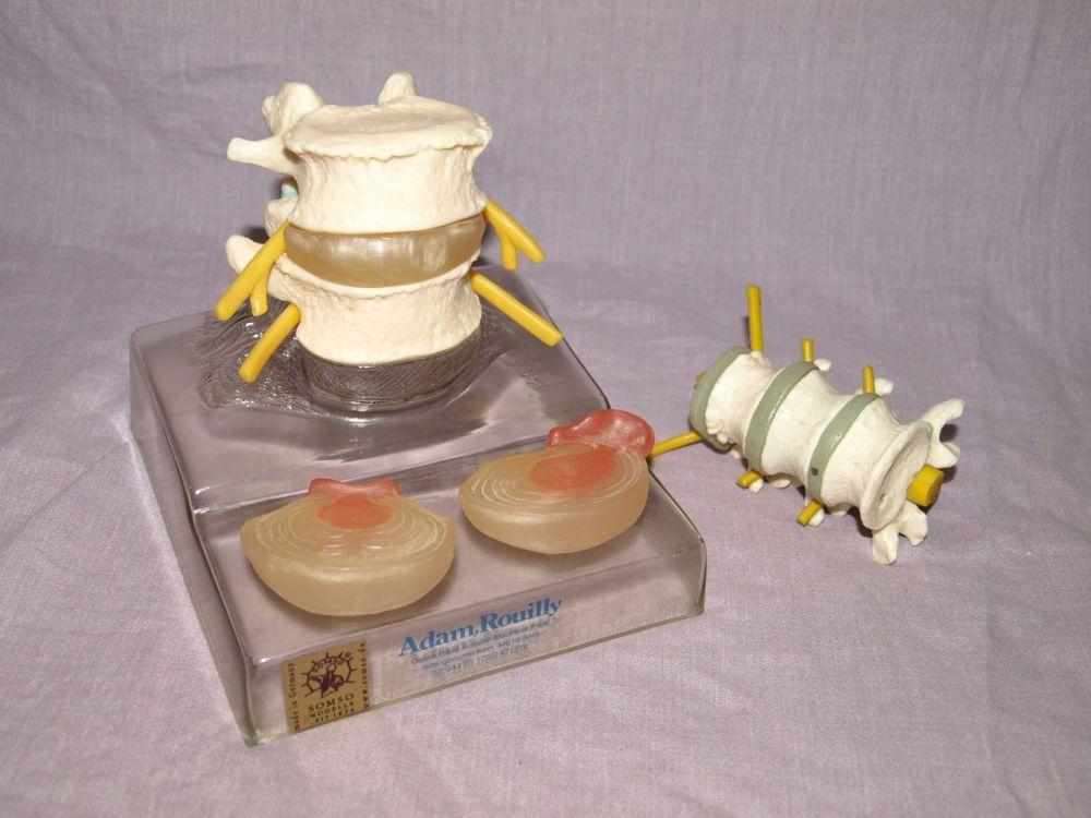 Somso Spine Backbone Vertebrae Professional Anatomical Model, Adam Rouilly.