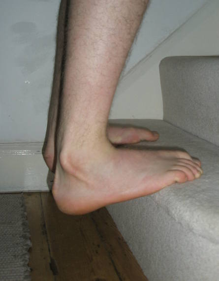 Ankle Stair
