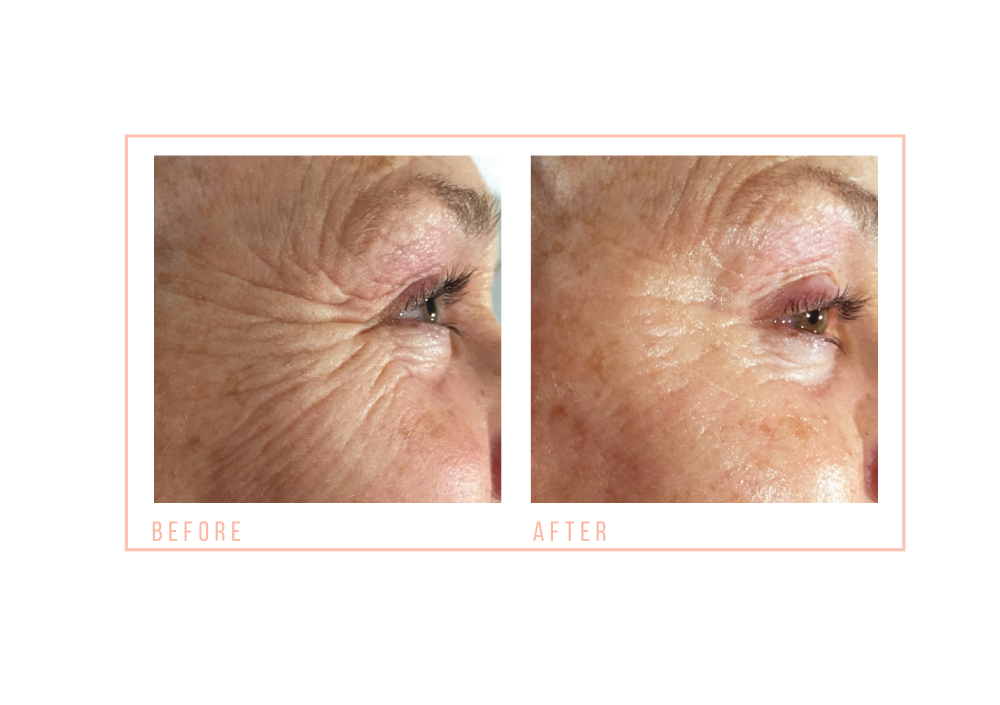 before and after Eye Revive