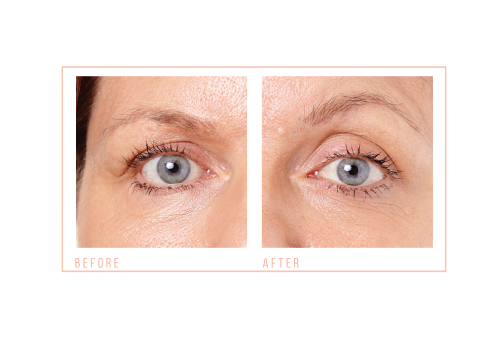 Before and After Eye Revive (1)