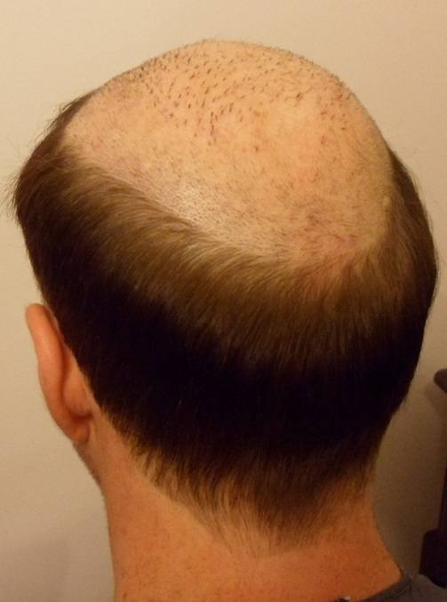 Before Hair Loss Treatment