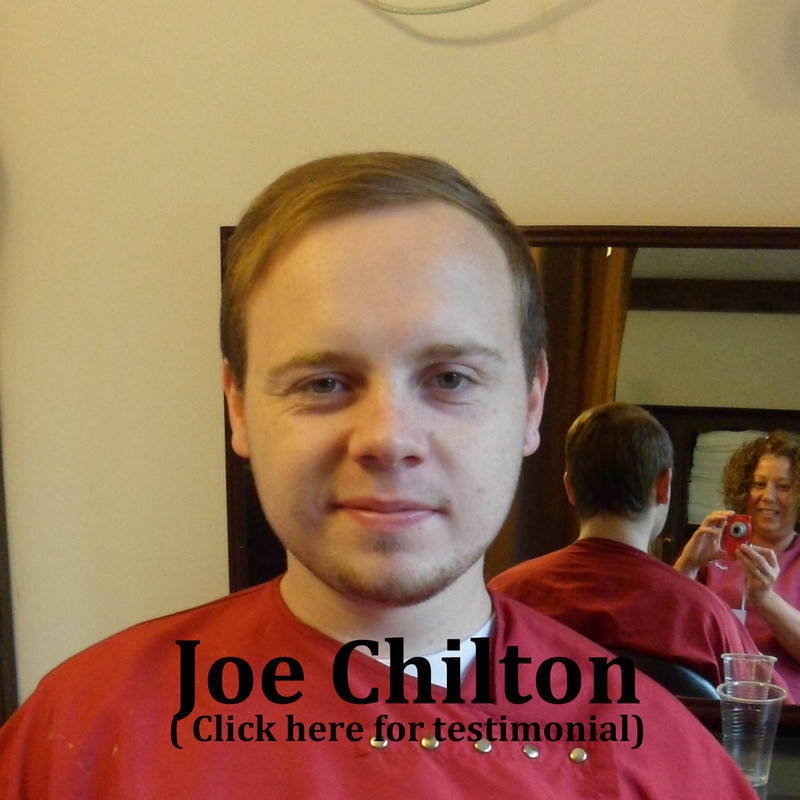 Joe Chilton at the Hair Loss and Scalp Clinic for Trichology