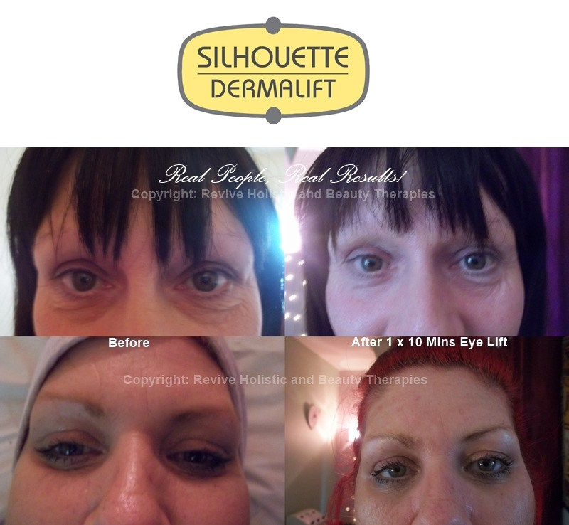dermalift eye before and after combo