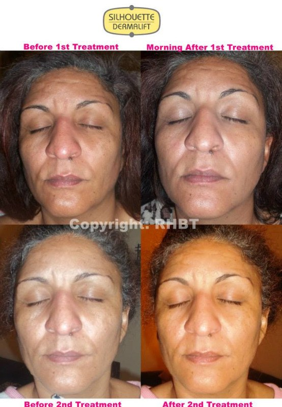 before and after 2 full facials
