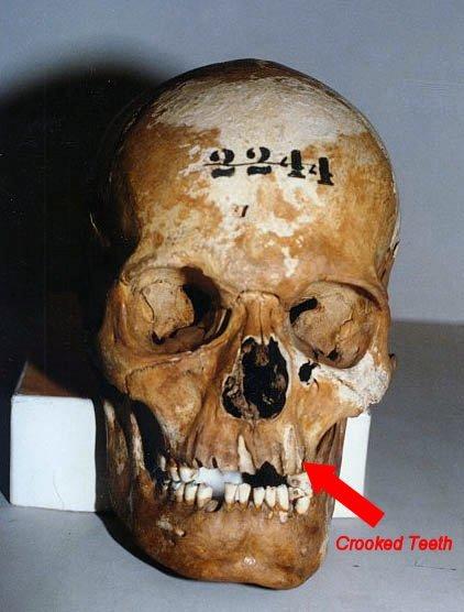 lpskull