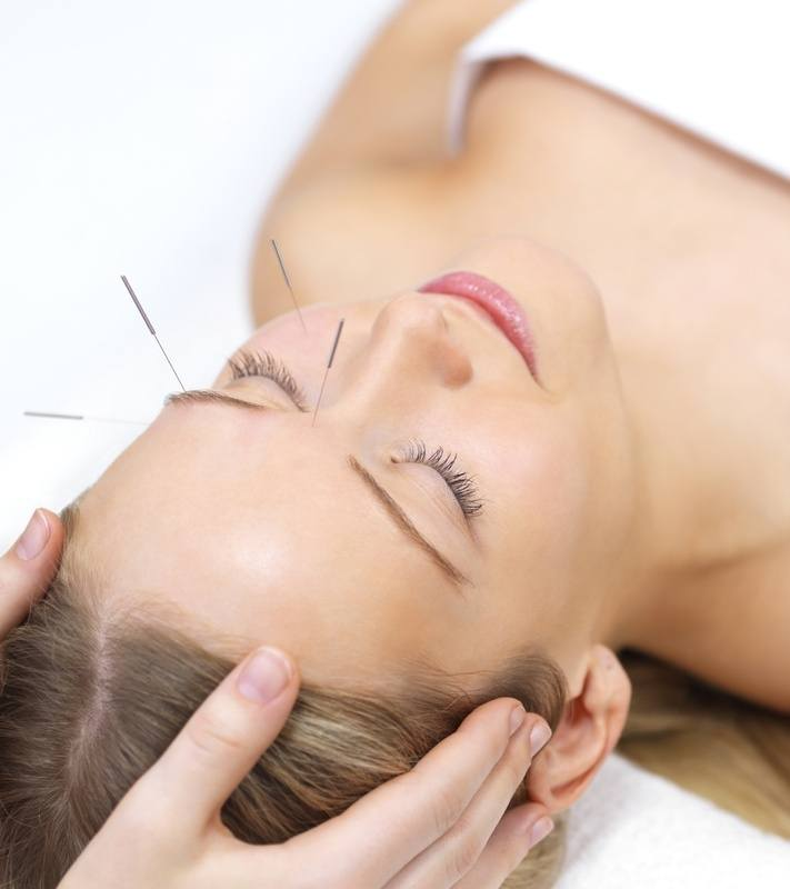 facial_acupuncture