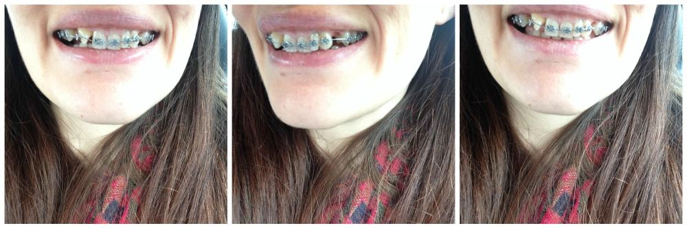 braces at 30 – i had my top brace fitted! photo