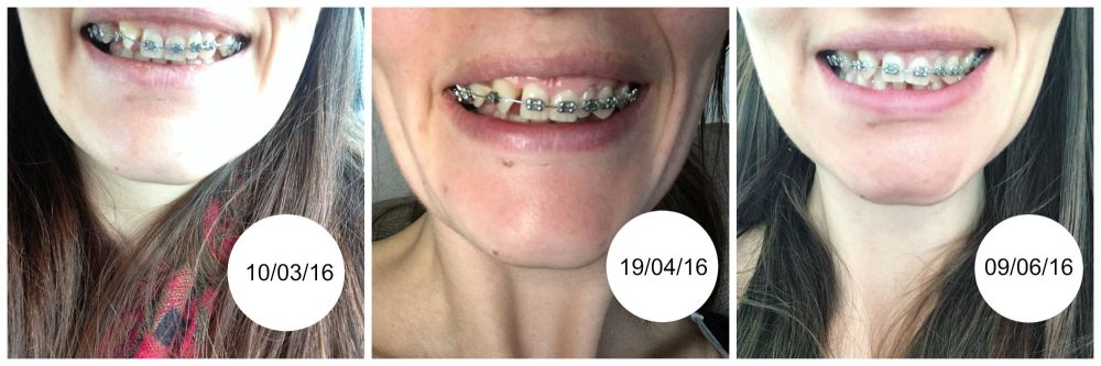 Three month progress braces 30 teeth blog post lylia rose
