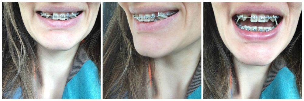 Braces in my 30s blog experience tightening elastics top to bottom