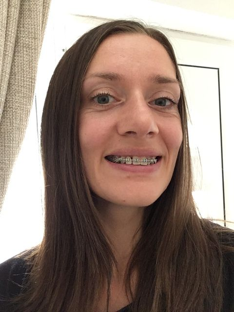 Braces at 30:  My 11th Appointment closing gaps and improving overbite