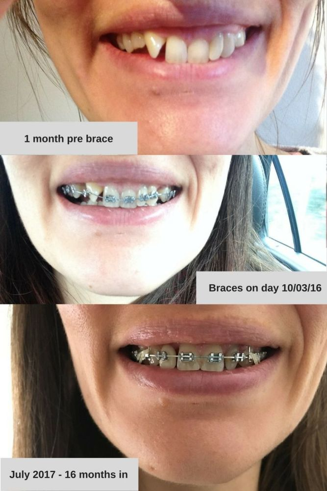 16 months with an adult brace before and after photos timeline
