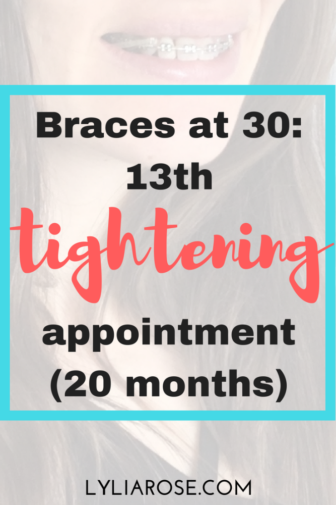 Braces at 30 My 13th tightening appointment update (20 months)