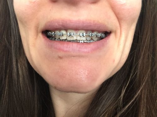 Braces at 30 15th Tightening 23 Months Before and After Photos