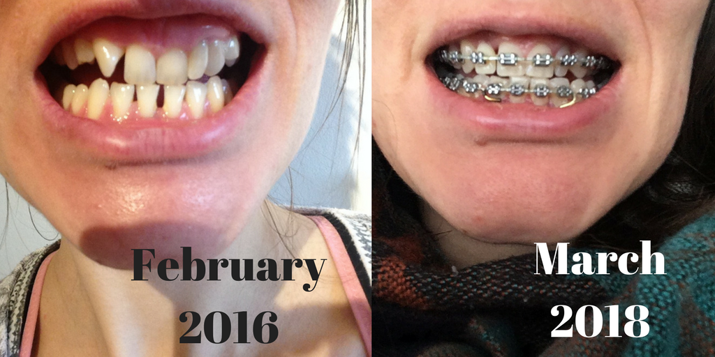 teeth braces march 2018 before and after photos 2 years (1)