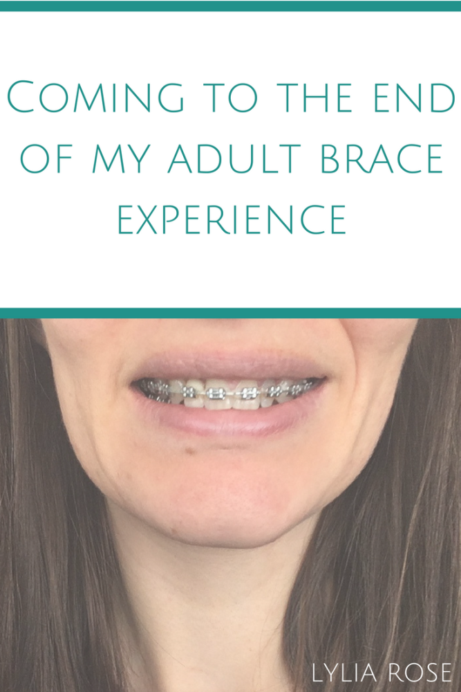Coming to the end of my adult brace experience_ Retainer fitting appointmen