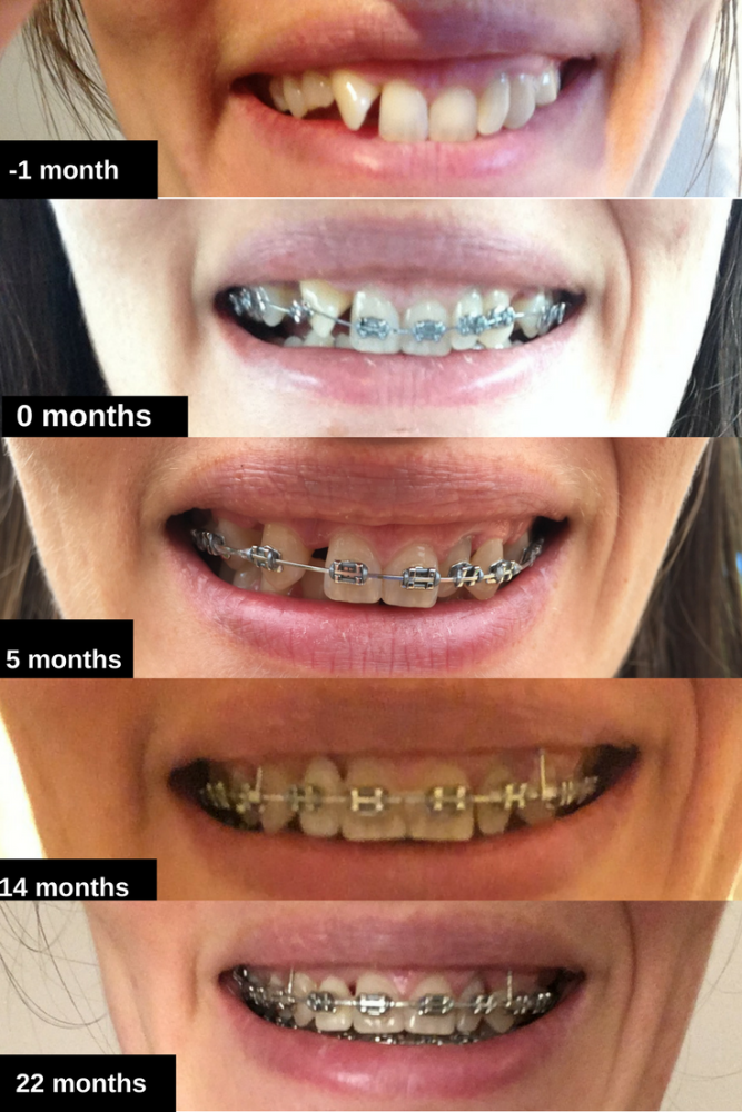 22 months brace timeline before and after photos adult experience wire trai