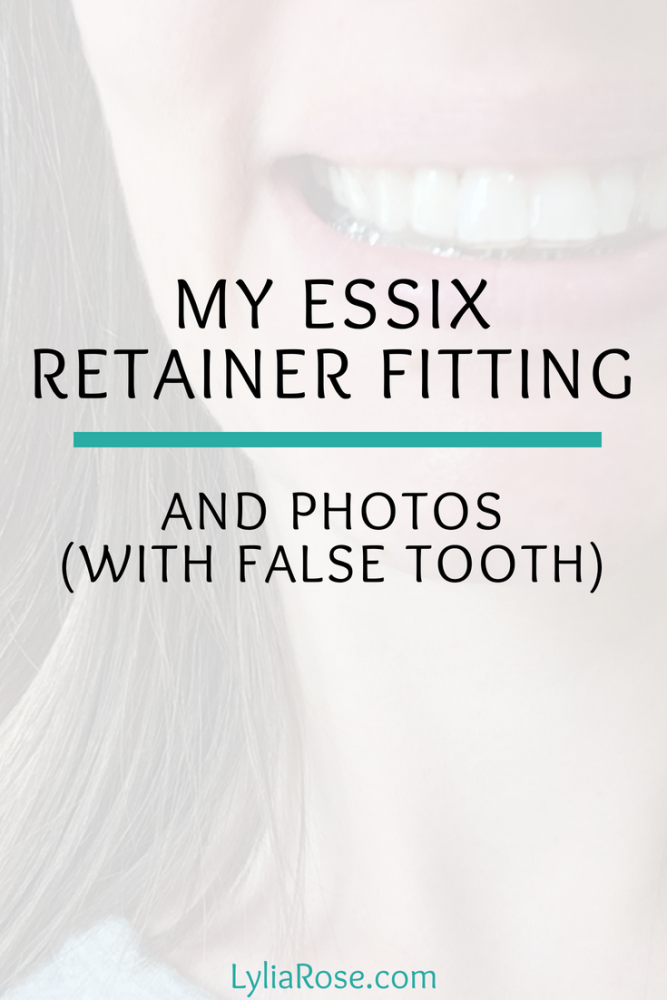 My Adult Essix Retainer Fitting and Photos with False Tooth Peg Tooth