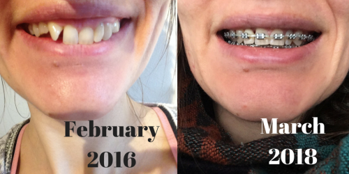 teeth braces march 2018 before and after photos 2 years