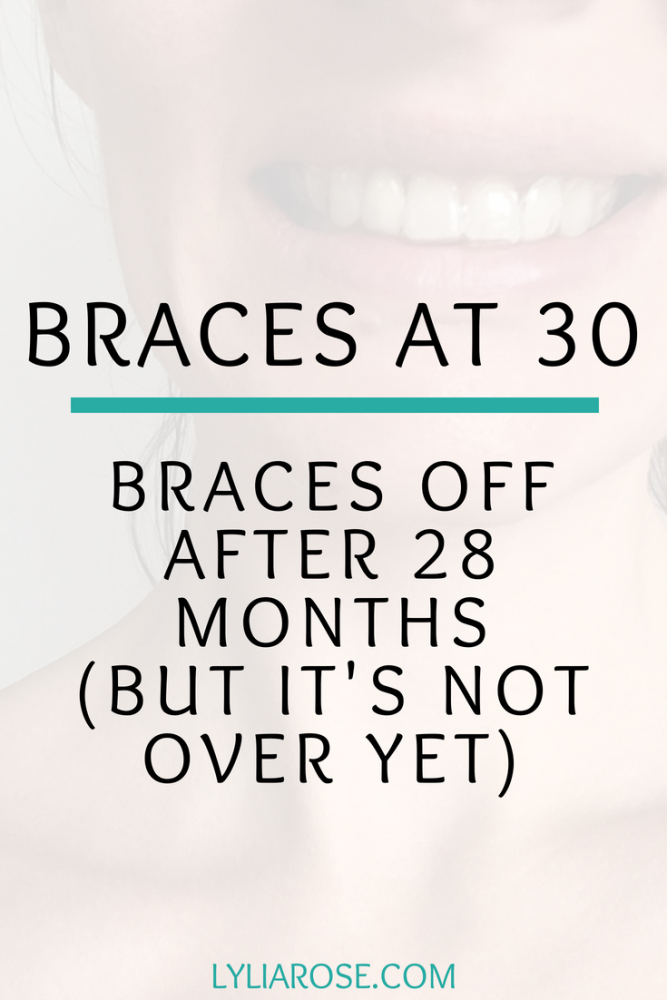 My latest braces at 30 update – No more braces after 28 months (but its no