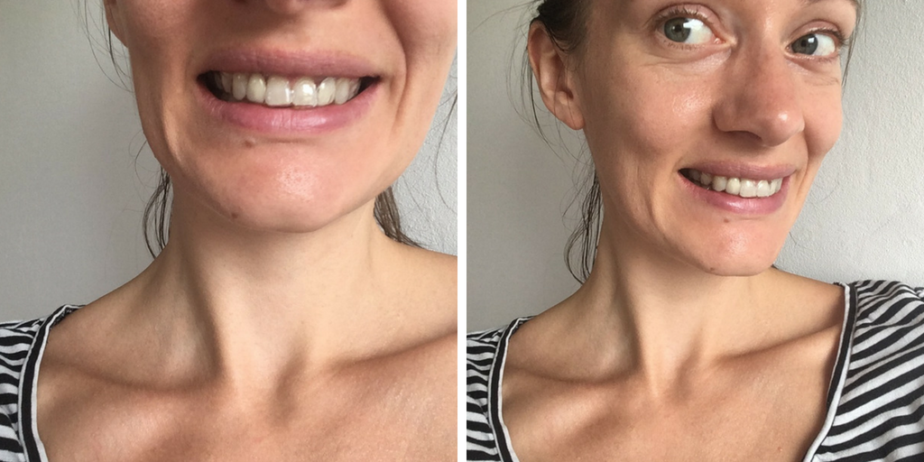NO MORE BRACES AFTER 28 MONTHS (BUT ITS NOT OVER YET) - orthodontics at 30