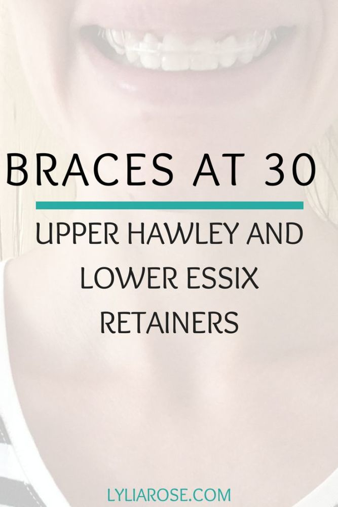 Braces at 30 - upper Hawley and lower Essix retainer fitting appointment