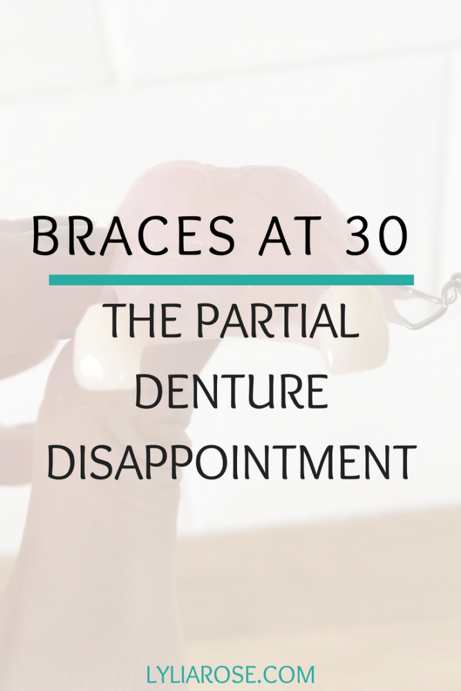 Braces at 30 – the partial denture disappointment