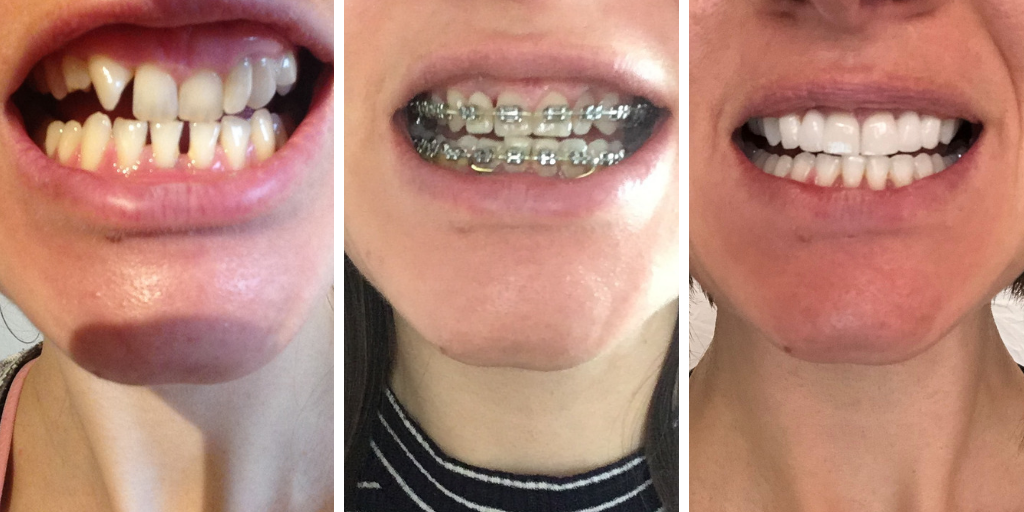 Adult braces, train tracks, bridges, cosmetic bonding, whitening, before af