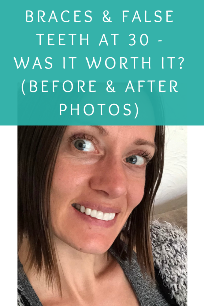 Braces and false teeth at 30– My teeth are done! Was it worth it_