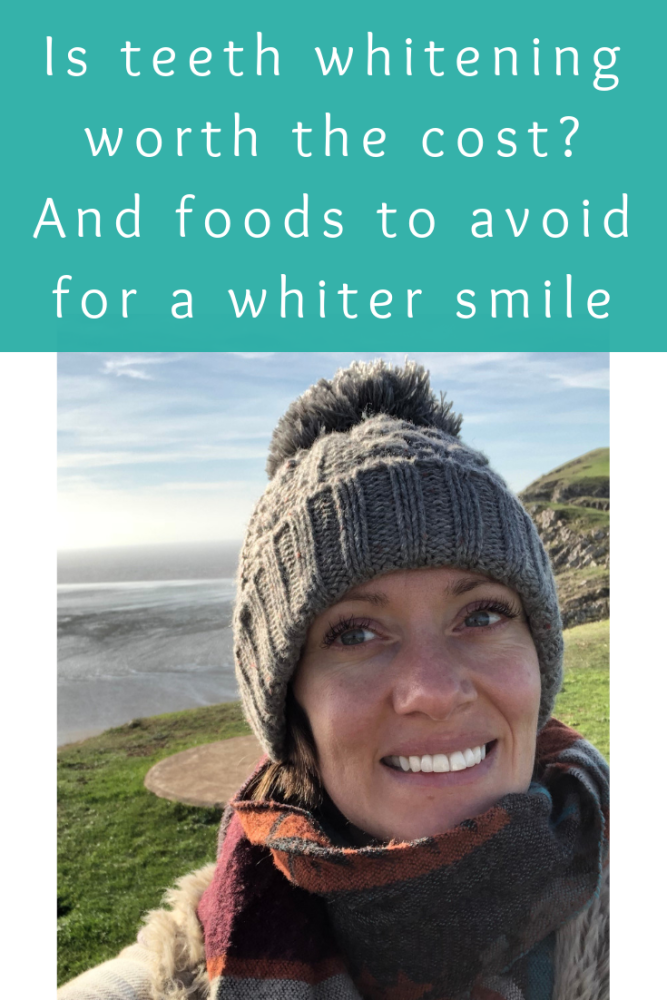 Is teeth whitening worth the cost_ And foods to avoid for a whiter smile (1