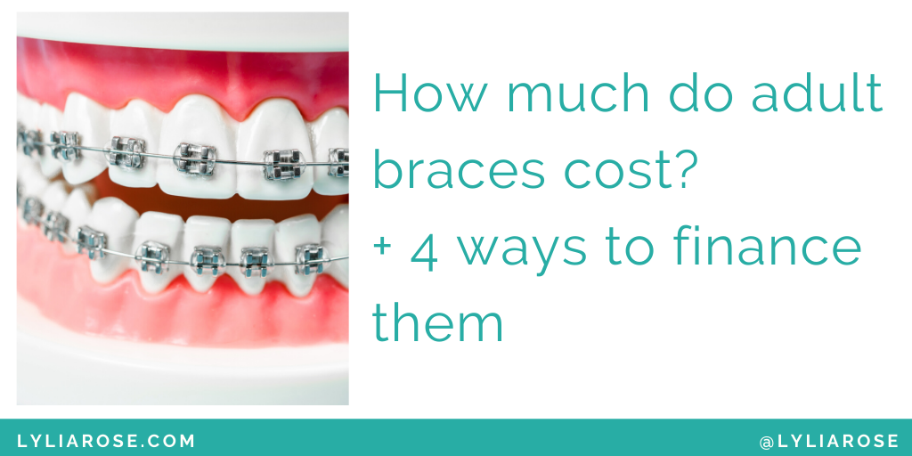 How much do adult braces cost_ + 4 ways to finance them (1)