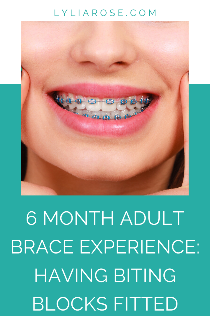 6 month adult brace experience update_ bottom train track metal brace and b