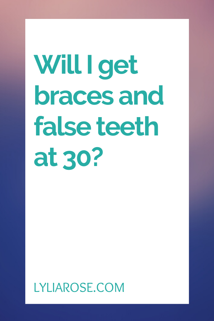Will I get braces and false teeth at 30_