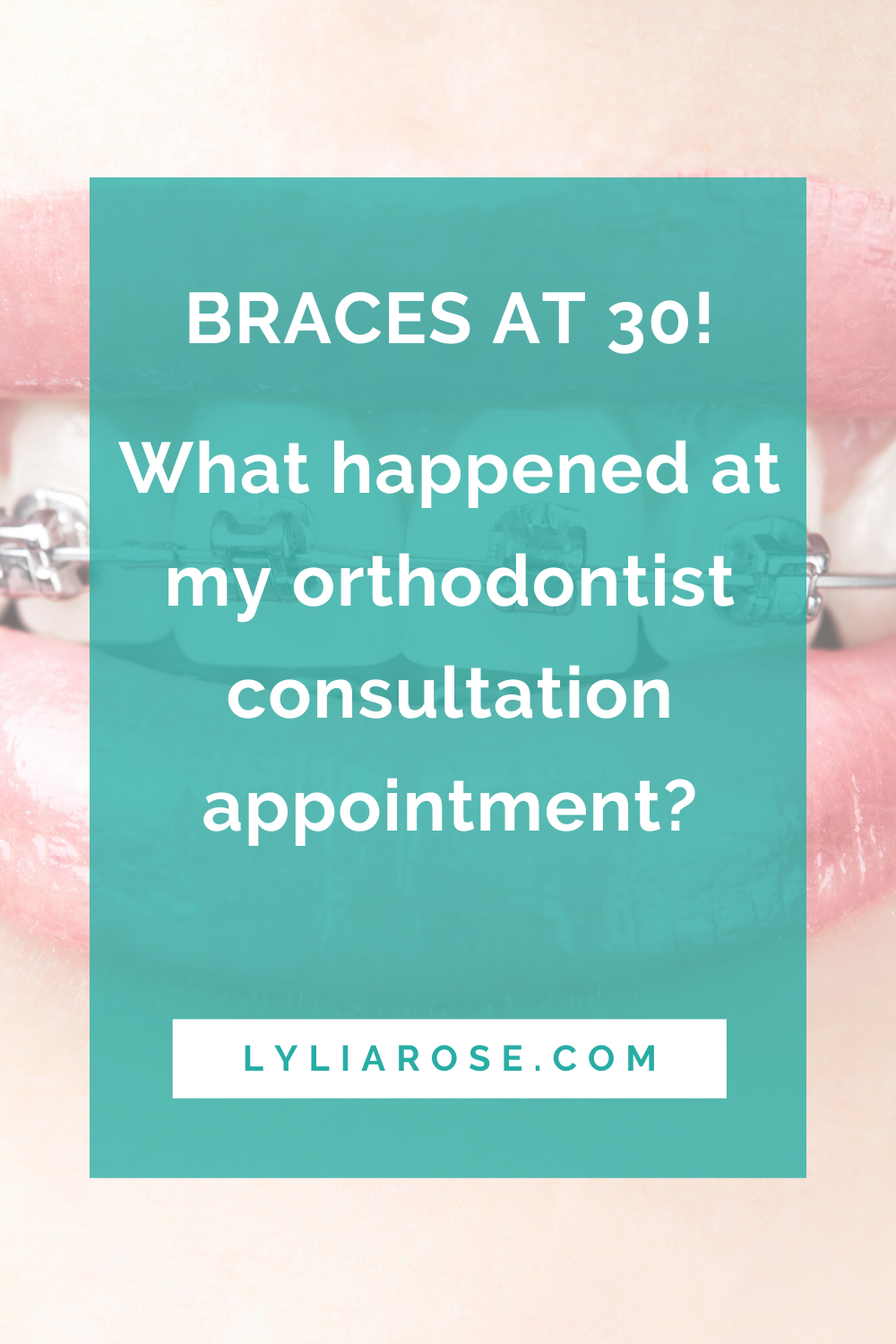 What happened at my orthodontist consultation appointment_