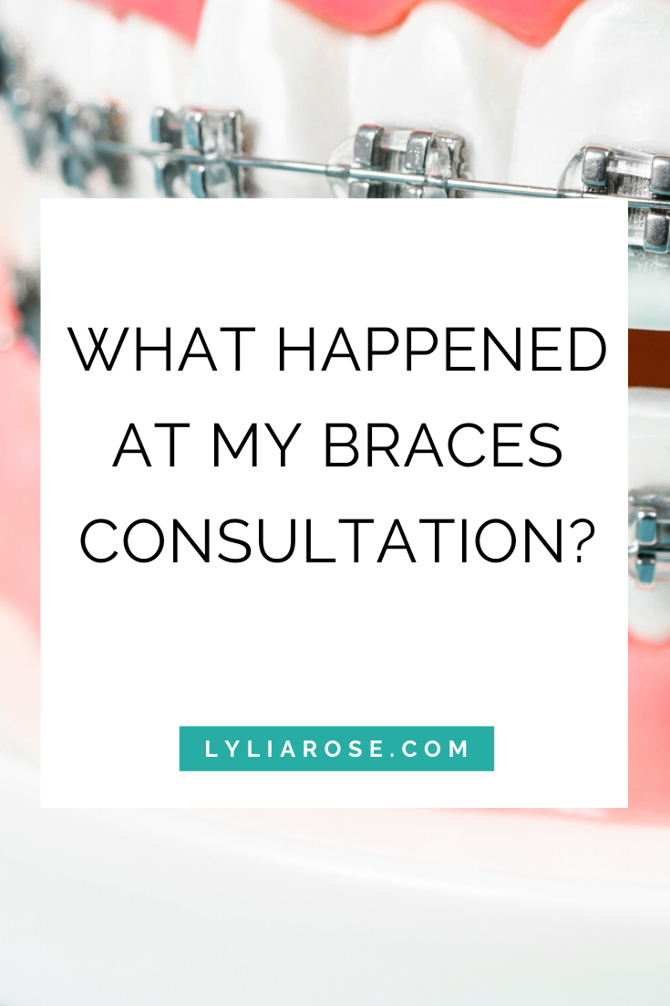 What happened at my braces consultation