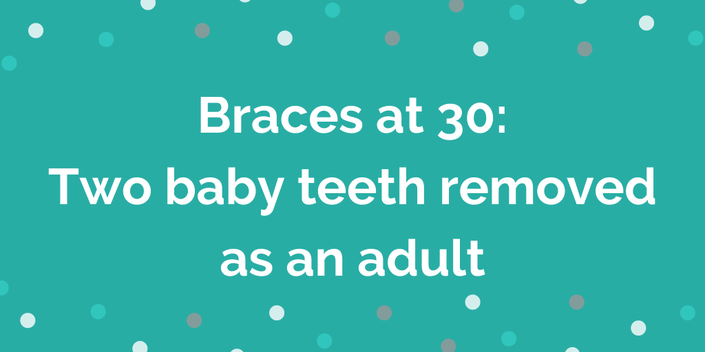 Braces at 30 – Two baby teeth removed as an adult
