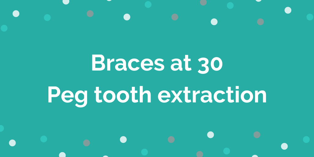 Braces at 30 _ Peg tooth extraction _ 28 Months