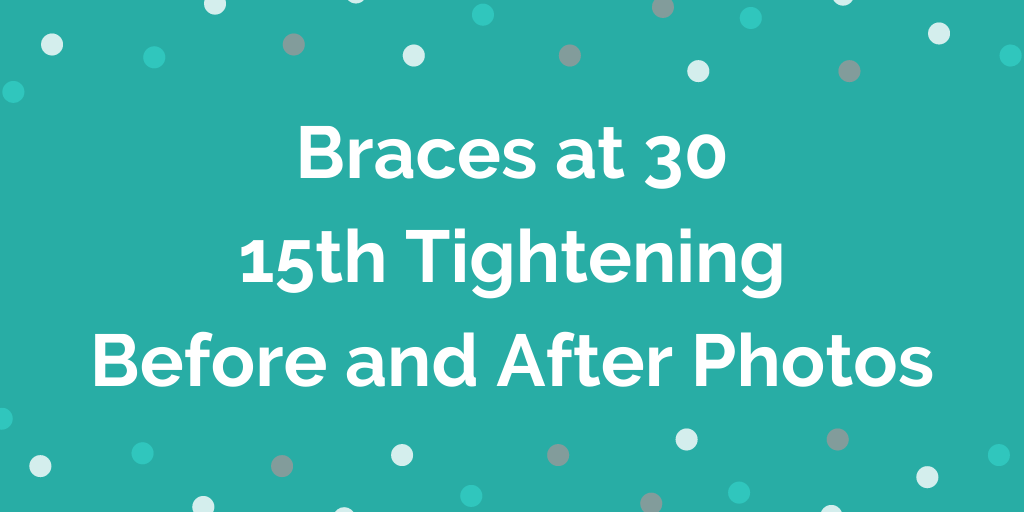 Braces at 30 _ 15th Tightening _ 23 Months _ Before and After Photos