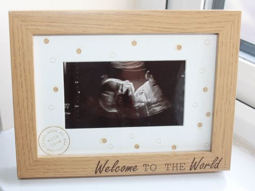 Welcome To The World Picture Frame