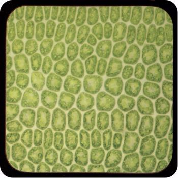 MOSS LEAF BY BRIGHTFIELD MICROSCOPY Coaster (C28)