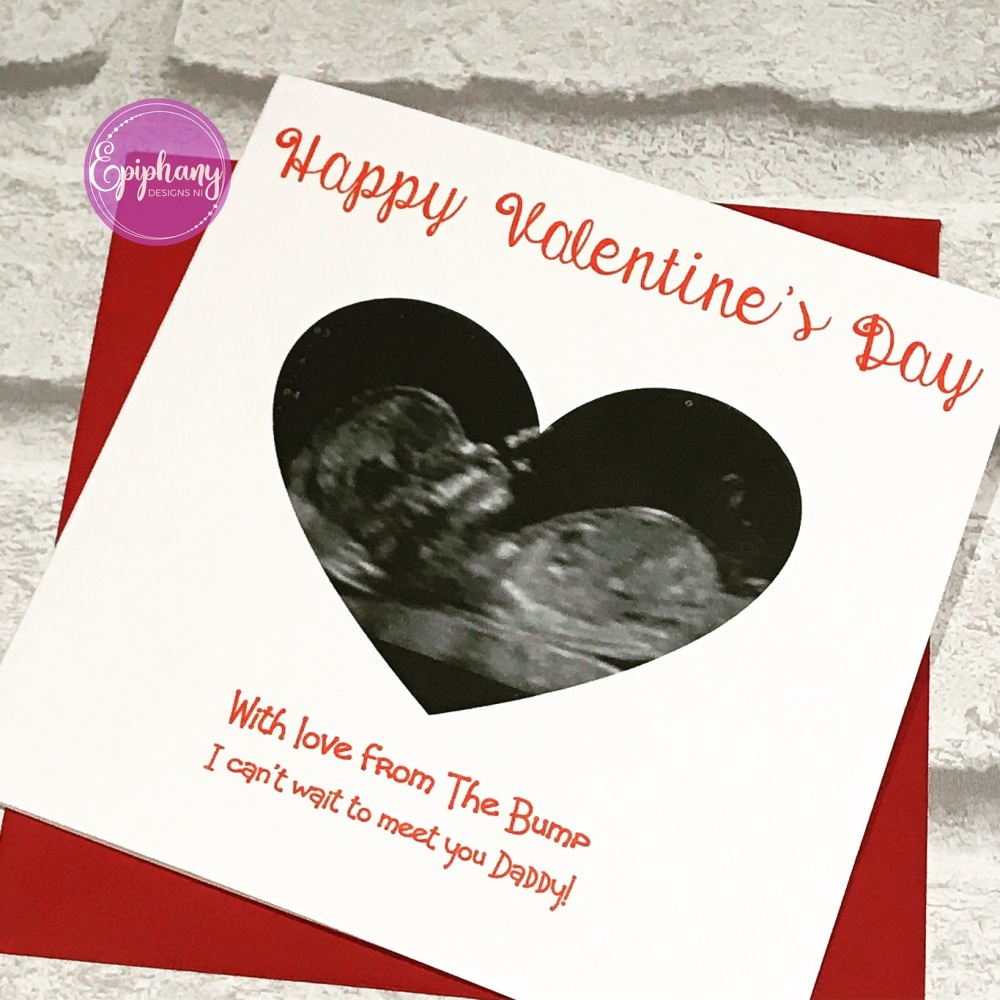 Valentines Day Card with scan photo from the bump