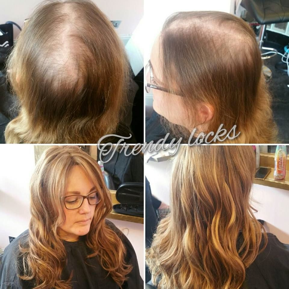 Mesh Integration Hair Replacement