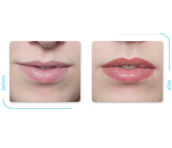 nouveau-contour-permanent-cosmetics-lips-3